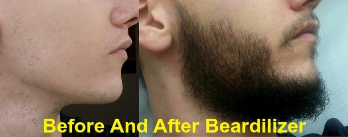Beardilizer Before & After